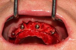 Geko-Situazione-dopo-inserimento-impianti-dentali.jpg