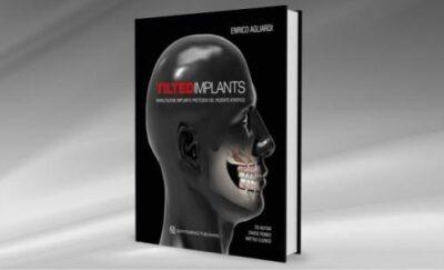 Tilted-implants-Riabilitazione-implanto-protesica-del-paziente-atrofico.jpg